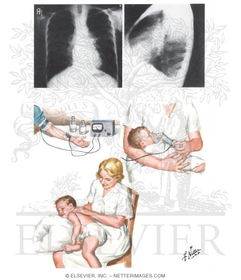 Pulmonary Fibrosis X Ray Cystic Fibrosis: Aspec...