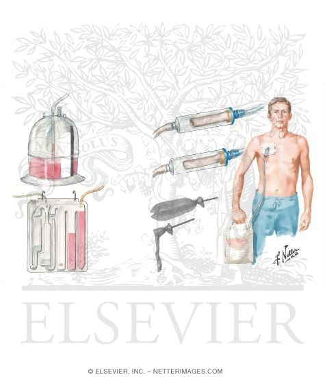 Illustration of Chest Draining Methods: Underwater-Seal Drainage of Chest; Heimlich ValveResection and Biopsy from the Netter Collection