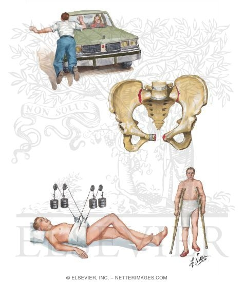 Illustration of Anteroposterior Compression Fracture of Pelvis (Open Book Fracture) from the Netter Collection