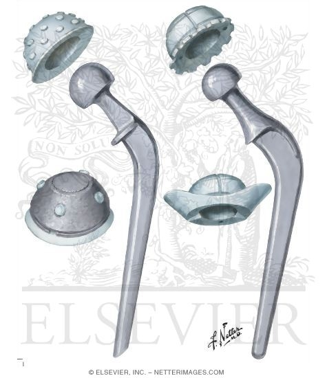 hip replacement size prothesis Implant companies use celebrities to promote hip replacement, typically showing the youthful lifestyle and active involvement in skiing, golf, and other outdoor activities please view all.