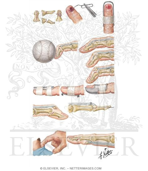 Illustration of Injury to Fingers from the Netter Collection