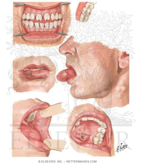 Syphilis of Oral Cavity