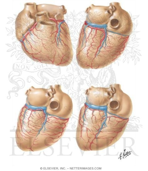 Illustration of Variations of the Coronary Arteries Coronary Arteries and Cardiac Veins: Variations from the Netter Collection