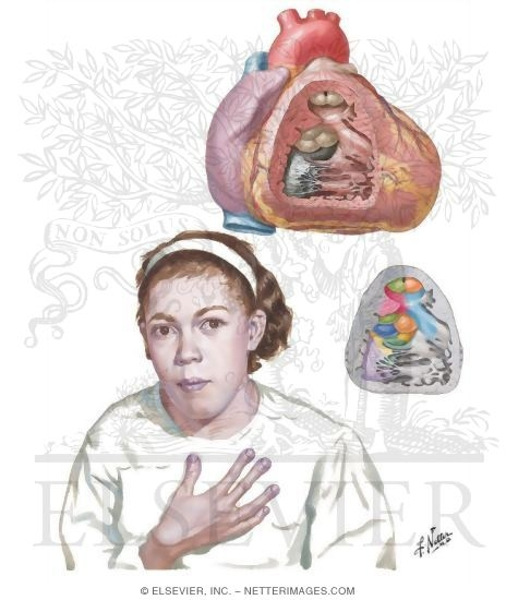 Illustration of Anomalies of the Right Ventricular - Outflow Tract - Tetralogy of Fallot from the Netter Collection