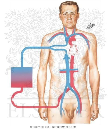 Illustration of Extracorporeal Circulation - Principle of Cardiopulmonary Bypass from the Netter Collection