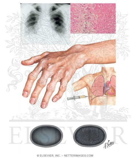 Rheumatoid Arthritis; Lung Involvement