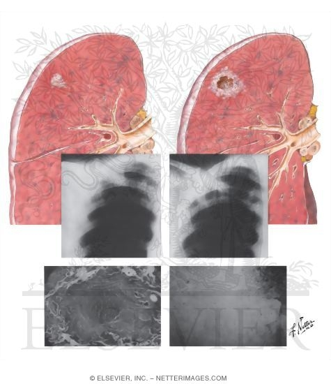 pulmonary tuberculosis thesis