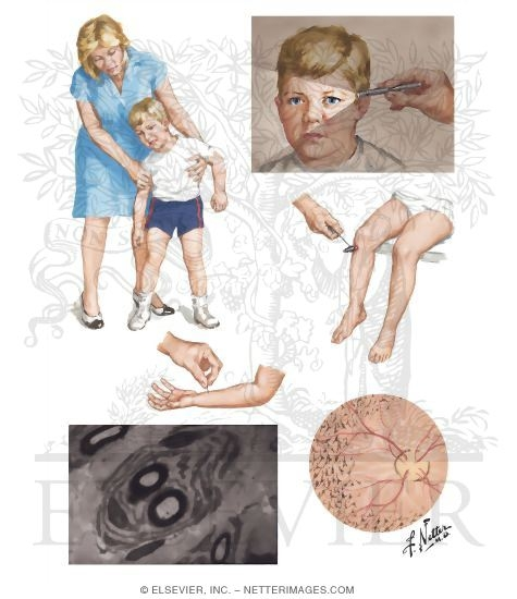 Illustration of Hereditary Motor-Sensory Neuropathy Type III from the Netter Collection