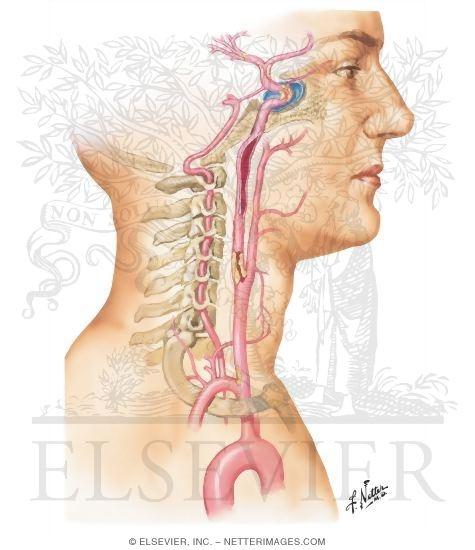 carotid artery occlusion