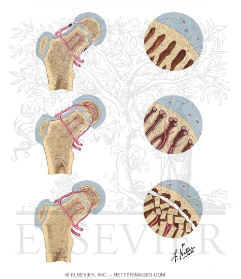 Illustration of Pathogenesis of Legg - Calve - Perthes Disease from the Netter Collection