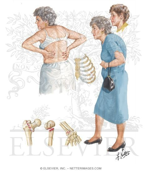Illustration of Osteoporosis in Postmenopausal Women from the Netter Collection