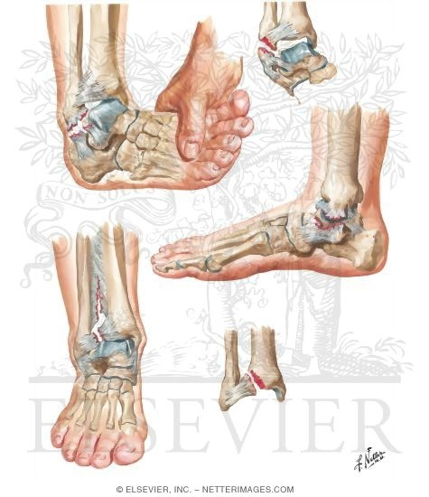Sprains and Sprain Fractures). foot sprain-www.netterimages.com