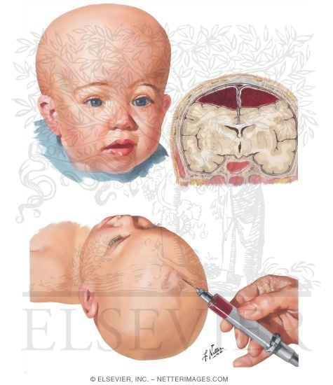 Chronic Subdural Hematoma In Infants