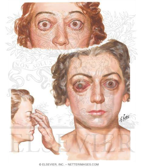 Hyperthyroidism (Graves' Disease)