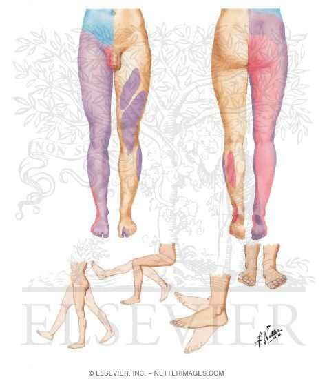 Segmental Sensory Innervation (Dermatomes) of Lower Limb