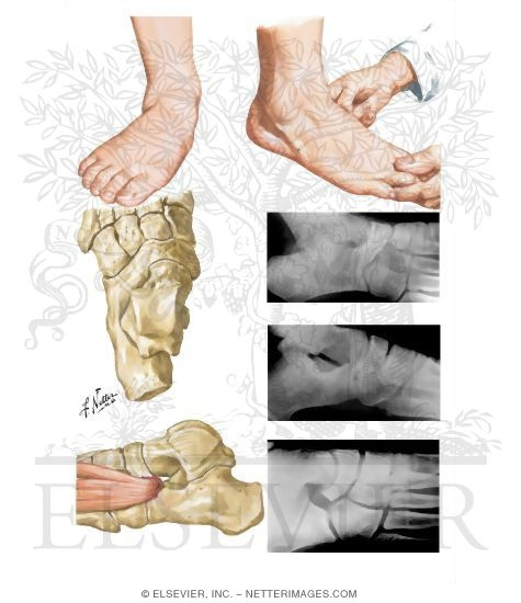 Tarsal Coalition Pediatric Disorders Of The Foot And Ankle