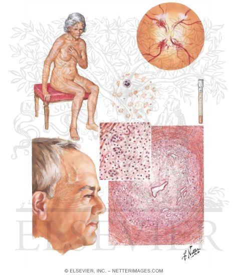 polyarthritis symptoms