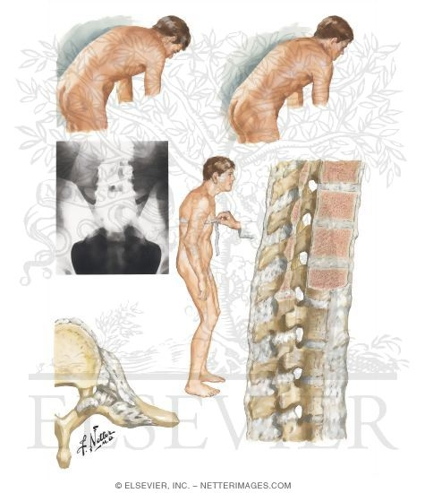 Illustration of Ankylosing Spondylitis from the Netter Collection