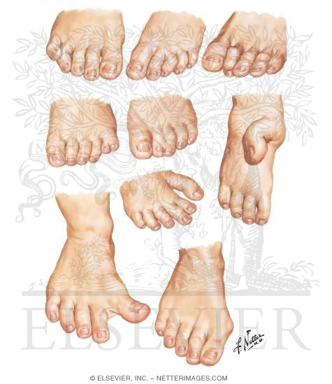 Illustration of Congenital Toe Deformities from the Netter Collection