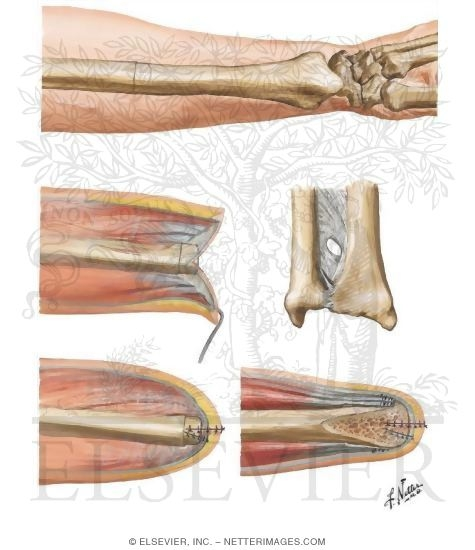 Amputation of the Forearm - Disarticulation Through the Wrist