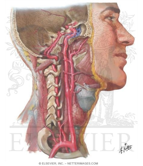 Illustration of Arteries to Brain and Meninges from the Netter Collection
