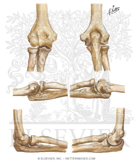 Bones of Elbow