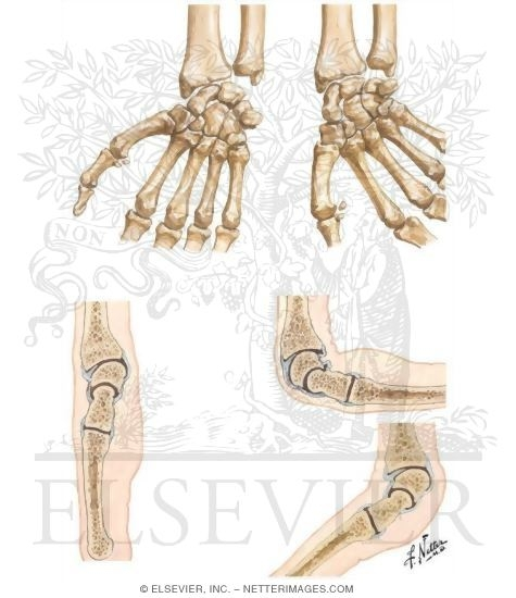 The Netter Collection Of Medical Illustrations Musculoskeletal