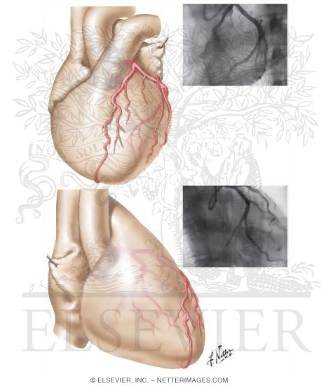 Coronary Arteries: Arteriographic Views