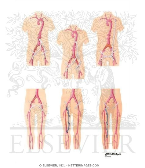 Illustration of Surgical Management of Peripheral Arterial Disease of Lower Extremity from the Netter Collection