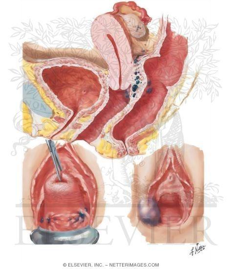 I Vulva Vagina Cervix