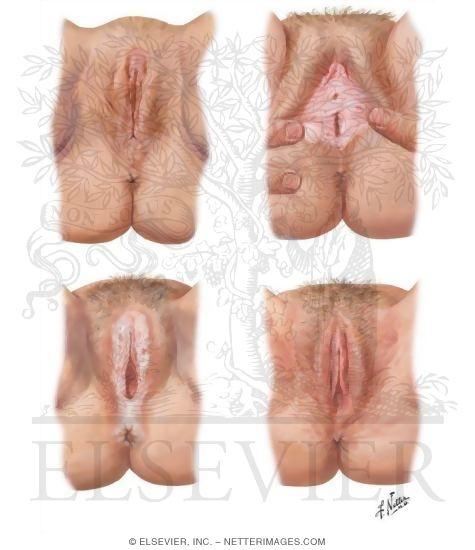 Vulvar Lichen Sclerosus