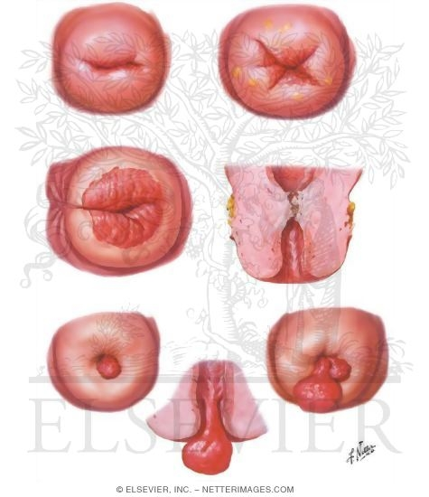 Lacerations, Strictures, Polyps. Other Versions of This Illustration