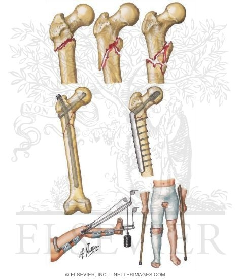 Fracture of Femur