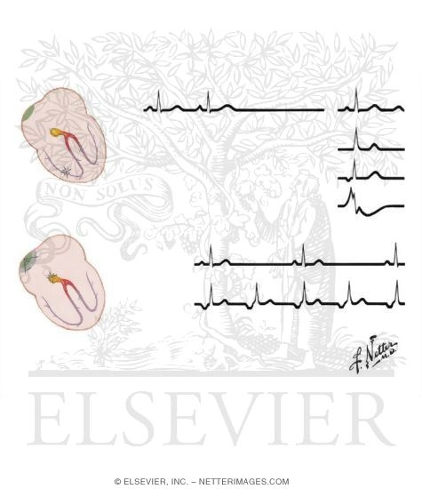 Illustration of Sinus Arrest and Sinus Block from the Netter Collection