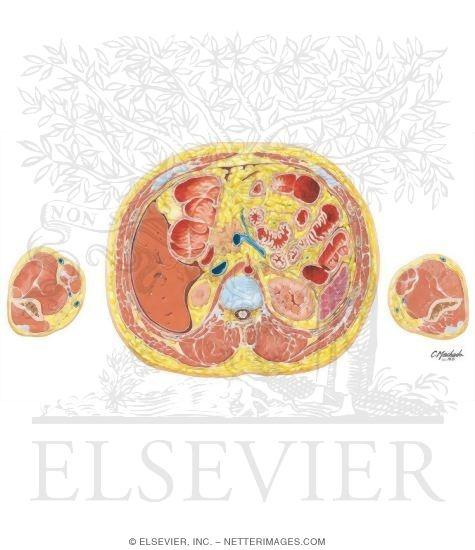 Abdomen Origins Of Celiac Artery And Portal Vein