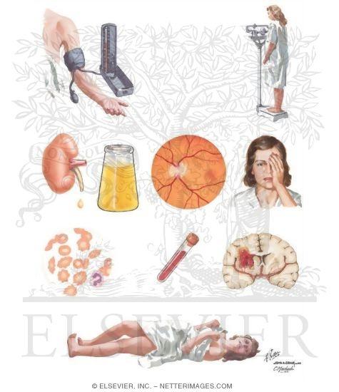 отеки, нефропатия, преэклампсия, эклампсия) ; поздние формы гестозов ( отеки, нефропатия, преэклампсия, эклампсия)
