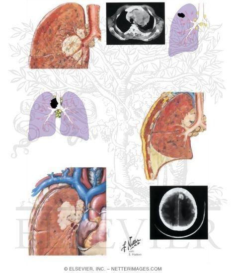 Lung Cancer (Stage IIIA and IIIB)