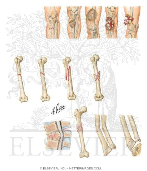 Illustration of Gustilo and Anderson Classification of Open Fracture from the Netter Collection