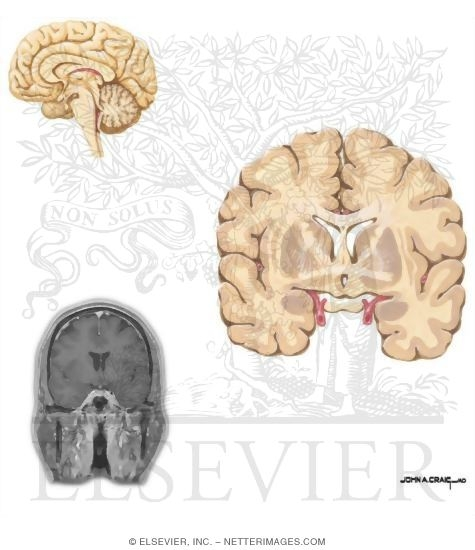 Coronal Sections Through the Forebrain: Anterior Commissure ...