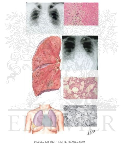 vascular disease: lung involvement, Skeleton