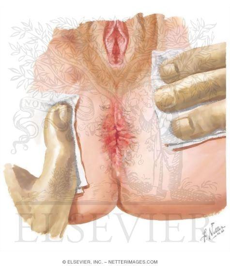 H pylori and anal puritis
