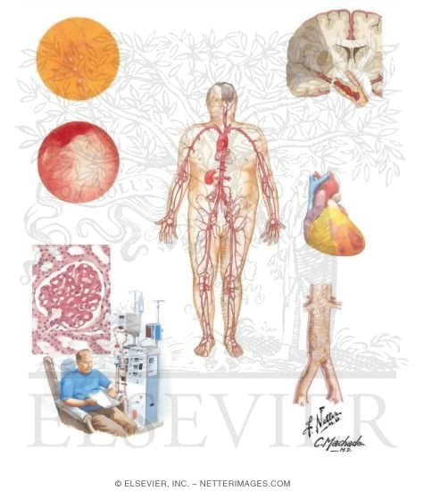 Diabetes Mellitus and Its Complications: Micro and Macrovascular ...
