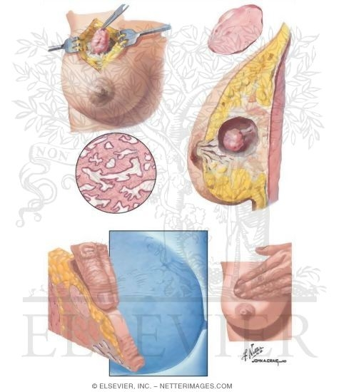 Illustration of Breast: Fibroadenoma from the Netter Collection