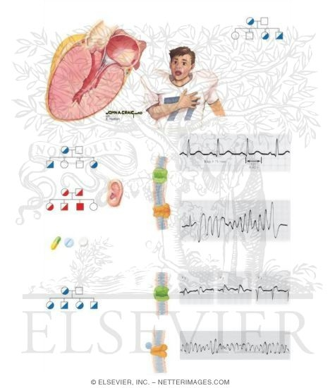 Illustration of Sudden Cardiac Death from the Netter Collection