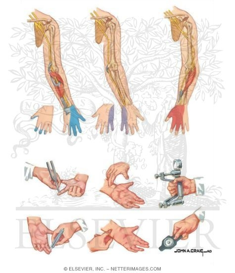 Peripheral Neuropathy Of Bilateral Lower Extremities