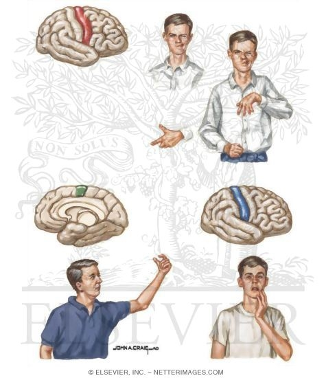 Partial Motor And Somatosensory Seizures
