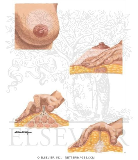 Illustration of Palpation of the Breasts  from the Netter Collection