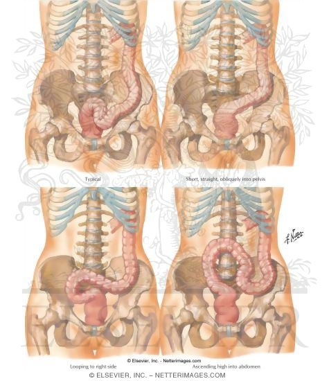Sigmoid Colon: Variations in Position Variations of the Sigmoid Flexure