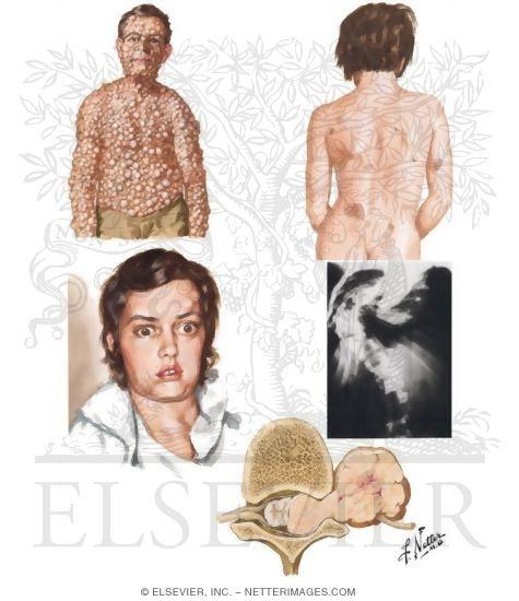 Illustration of Neurofibromatosis (von Recklinghausen's Disease) from the Netter Collection
