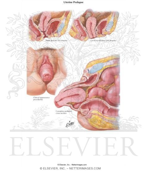 Illustration of Uterine Prolapse from the Netter Collection